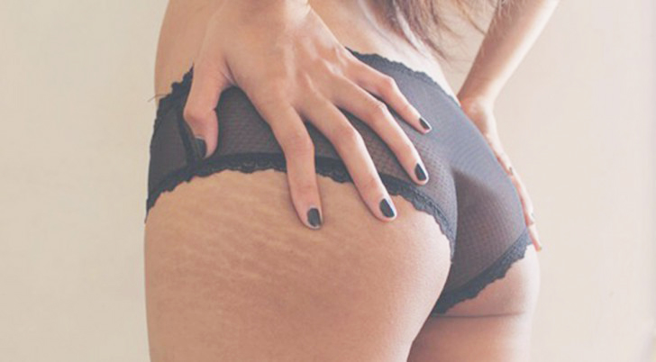 stretch-marks-butt